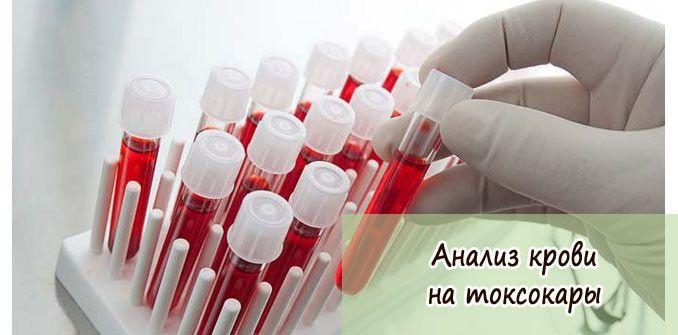 Анализ крови на токсокары