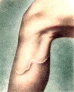 Дракункулез на ногах