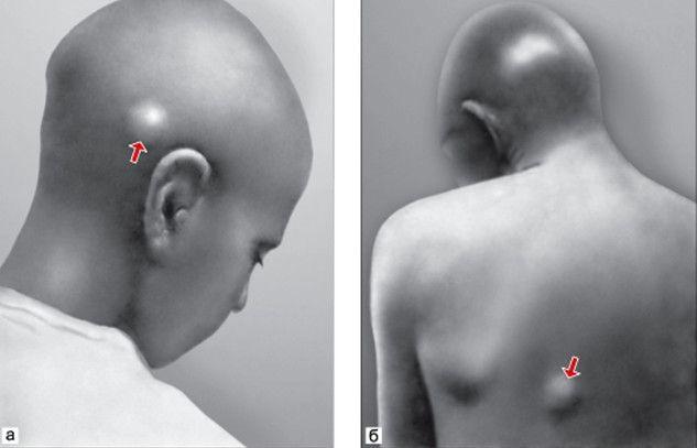 Филяриоз на голове и спине