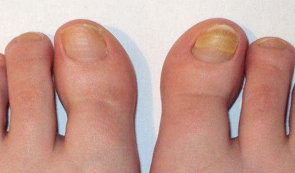 Грибок ножных ногтей