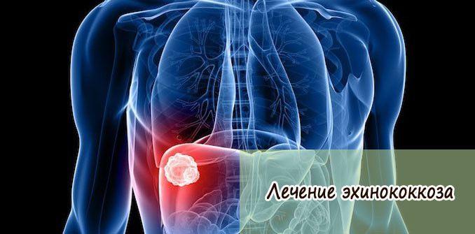 Эхинококкоз: лечение