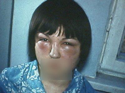 Трихинеллез симптомы у человека фото отека лица