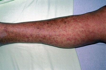 Трихинеллез симптомы пятнисто-папулезной сыпи фото