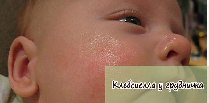 klebsiella-u-grudnichka
