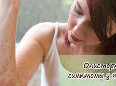 opistorhoz-simptomyi-u-cheloveka