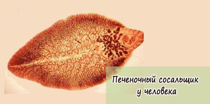 pechenochnyiy-sosalshhik-u-cheloveka
