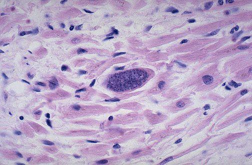toksoplazma-foto
