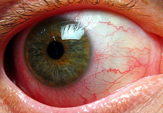 toksoplazmoz-simptomyi-u-cheloveka-porazhenie-glaz