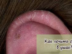 Грибок в ушах - как лечить