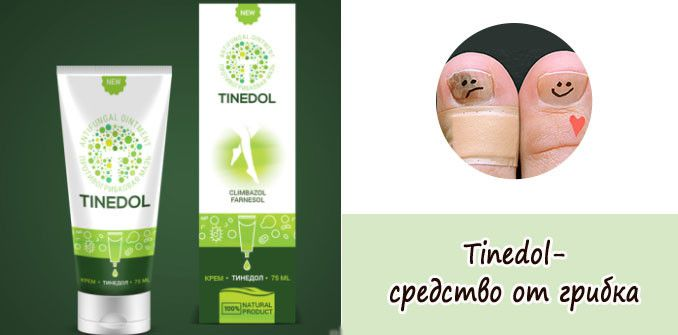 Тинедол - средство от грибка