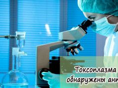Токсоплазма IgG антитела обнаружены