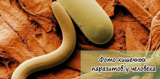 фото кишечных паразитов у человека
